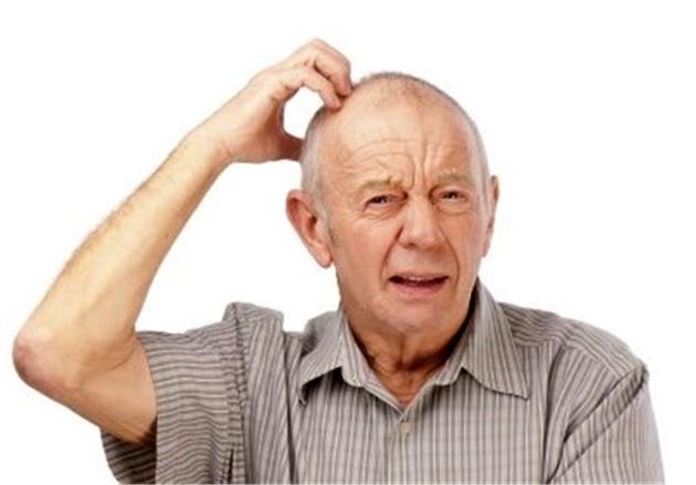 یک نفر در هر ۳ ثانیه در جهان به آلزایمر مبتلا میشود